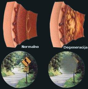 Rumena pega