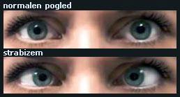 strabizem Strabizem (škilavost) in Ambliopija (leno oko)